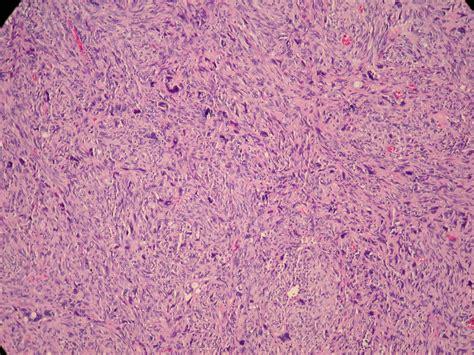 Gastrointestinal Stromal Tumor Pathology Outlines by Gastrointestinal Stromal Tumor Pathology Outlines Letter Of Sponsorship Sle Vocational