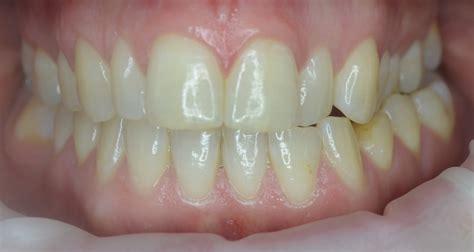 quick straight teeth shiremoor dental practice