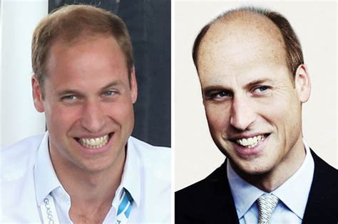 balding in my late 30 how prince william will look at 50 royal scalp will be