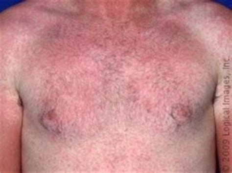 itchy skin rash after c section image gallery morbilliform