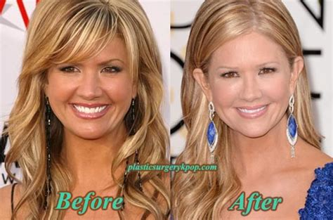 nancy odell plastic nancy o dell plastic surgery before and after pictures