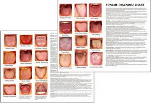 tongue color chart tongue diagnosis chart clinical charts and supplies