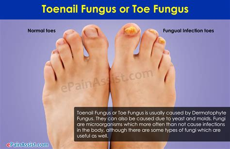 cross dressing symptoms treatments and resources for toenail fungus home remedies symptoms causes treatment