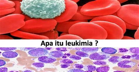 Obat Herbal Tahitian Noni pengobatan alternatif leukimia kanker darah pengobatan
