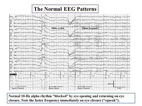 normal sleep pattern 2 year old mansoura university hospitals eeg teaching courses tamer