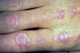 Dermatomyositis polymyositis dermatomyositis