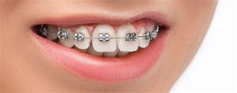 damon braces  dental practice nhs dentist glasgow