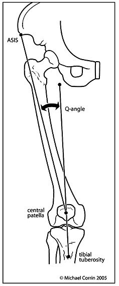 The gallery for --> Q Angle Genu Valgum Q Angle Genu Valgum
