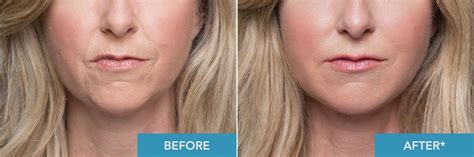 age reducing makeovers radiesse makeover win a 5000 lower face makeover