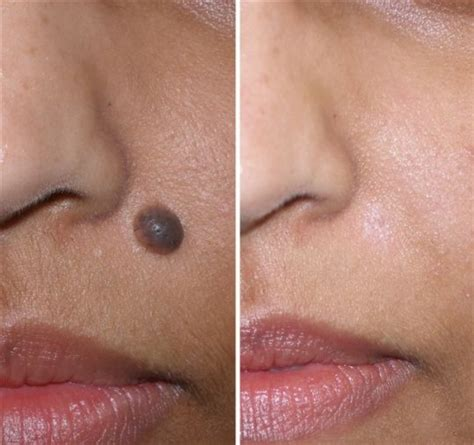 gallery category mole scar and removal