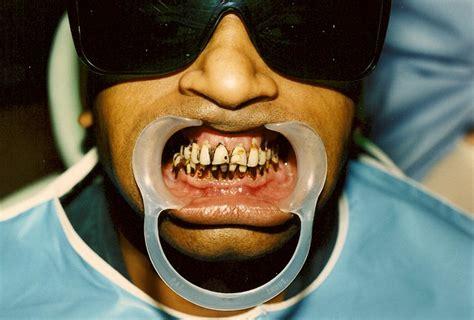 leicester square dental hygiene dentist  leicester