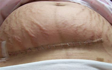 c section scar reduction c section scar removal surgery