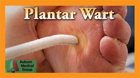 plantar wart treatment auburn medical group doovi