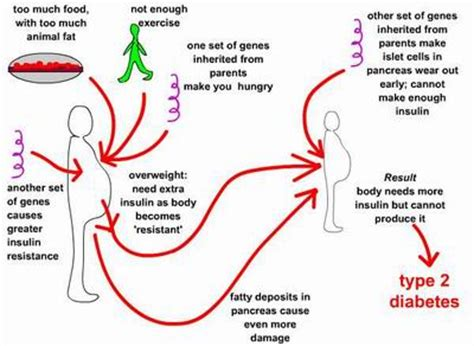 diabetes the real cause and the right cure books type 2 diabetes symptoms causes diagnosis type 2