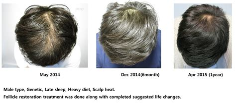 Types Of Hair Loss by Damo Hair Loss Solution Type Hair Loss Genetic