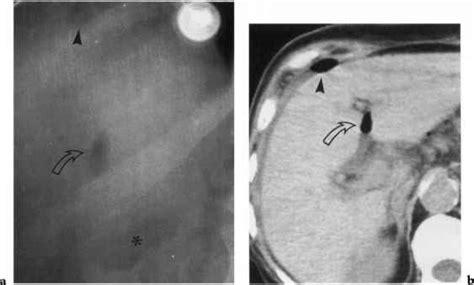 Cupola Sign Radiology by Cupola Sign Dynamic Radiology Barnard Health Care