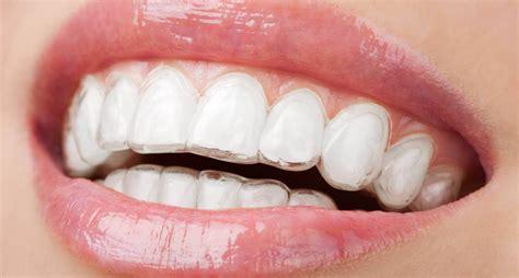 apparecchio mobile trasparente ortodonzia invisibile l apparecchio trasparente dott