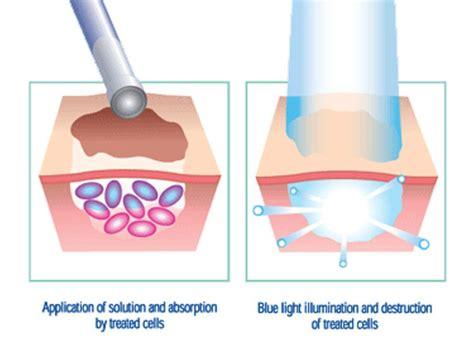 Mym Dermapen By Ste Shops pdt manage your skin damage now comprehensive