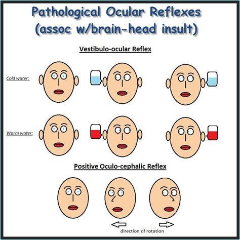 vestibulocochlear reflex pathological ocular reflexes the second one is considered