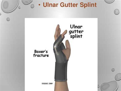 arm gutter splint splint ppt by rupeshkumar