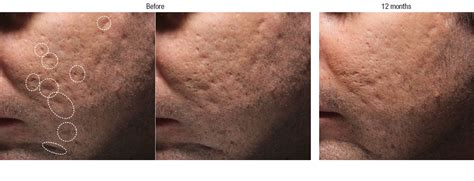 bellafill for results of acne scars acne scar filler before and after photos irvine