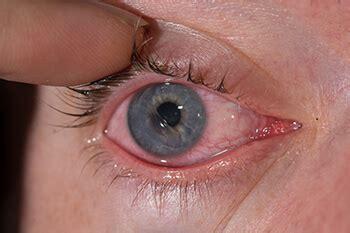 scratched cornea corneal abrasion burlington scratched cornea plattsburgh ny