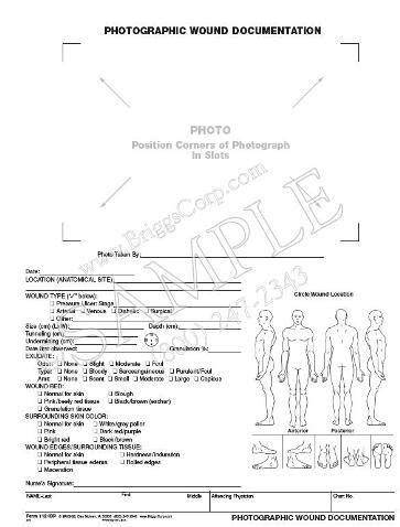 25 Images Of Wound Treatment Template Stupidgit Com Wound Care Documentation Template