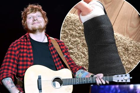 ed sheeran fracture ed sheeran cancels tour dates after fracturing right wrist