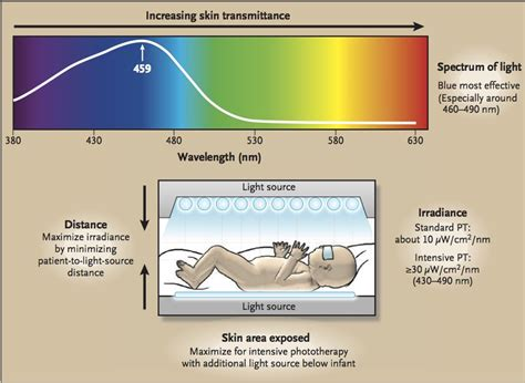 light emitting diode phototherapy for unconjugated hyperbilirubinemia in neonates nedarim 8b heliotherapy talmudology