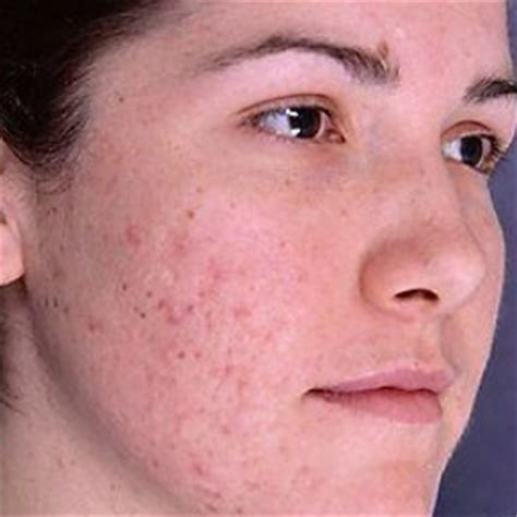 acne on chin how to remove pimple marks from fast overnight instantly