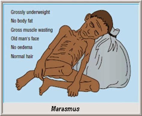 related keywords suggestions  marasmus asthenia