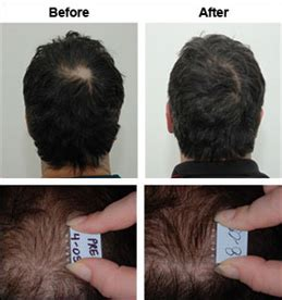 hair thinning crown is my crown thinning short hairstyle 2013