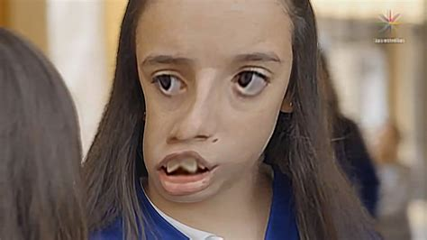la chica de los 1533662614 la rosa de guadalupe la ni 209 a mas fea del mundo youtube