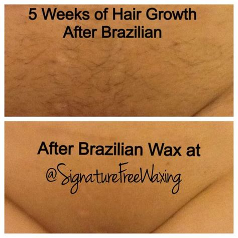 brazilian wax photos before and after pinterest the world s catalogue of ideas