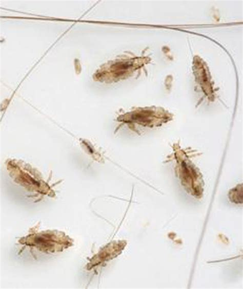 warning mutant lice that are immune to lotions