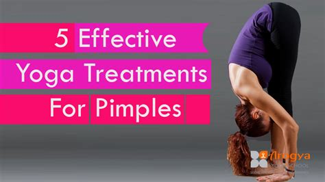 5 Best Emergency Remedies For Pimples by 5 Effective Treatments For Pimples Arogya School