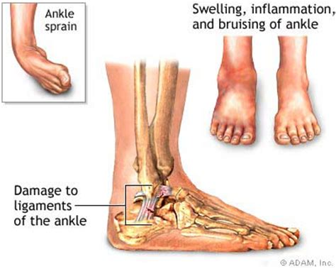 Interior Ankle Sprain by Sprained Ankle