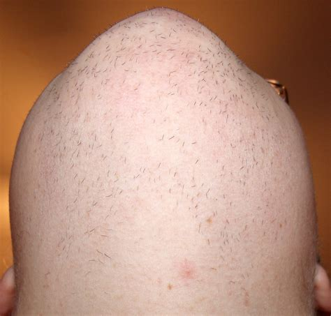excess pubic hair male pubic hair growth pattern pictures dark brown hairs