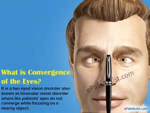 His And Her Items What Is Convergence Disorder Or Convergence Insufficiency Amp How Is It Caused