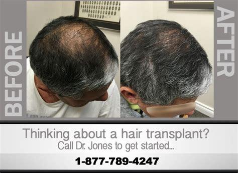 best hair transplant doctors in america best hair transplant doctors in america hair transplant