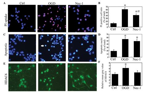 pattern expression meaning inhibiting histone deacetylase 6 partly protects cultured