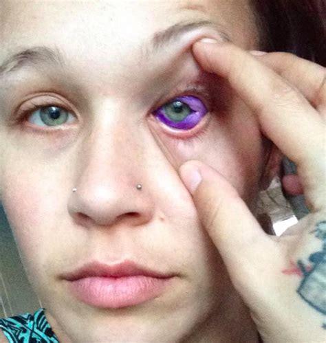eyeball tattoo procedure model who let boyfriend tattoo her eyeball now warns