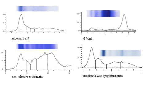 protein electrophoresis urine nobleresearch