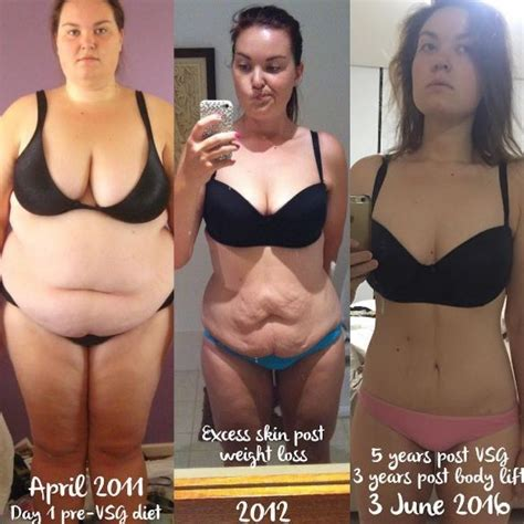 flabby skin 60 year female great gastric sleeve success story read before and after