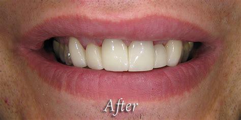 comfort dental new hope comfort dental new hope mn minnesota sedation dentistry