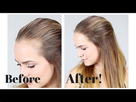 hairstyles for long hair to hide a lined forehead how to hide recession in your hair line youtube