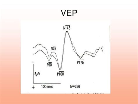pattern vep ppt visual evoked potentials powerpoint presentation