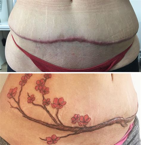 tattoos designs to cover tummy tuck scar 10 amazing scar cover up tattoos part 6