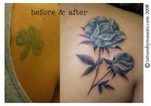 cover up as an alternative to laser removal