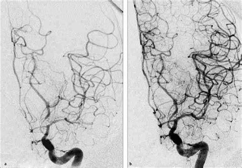 angiografia cerebral angioplastia cerebral vasoespasmo por hemorragia